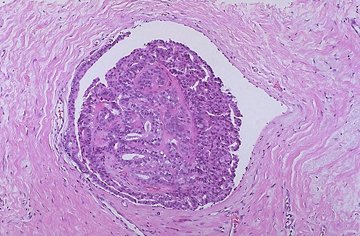 intraductal papilloma findings