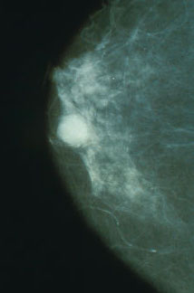 https://upload.medbullets.com/topic/120423/images/mammo_breast_cancer.jpg