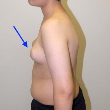 https://upload.medbullets.com/topic/120431/images/gynecomastia.jpg