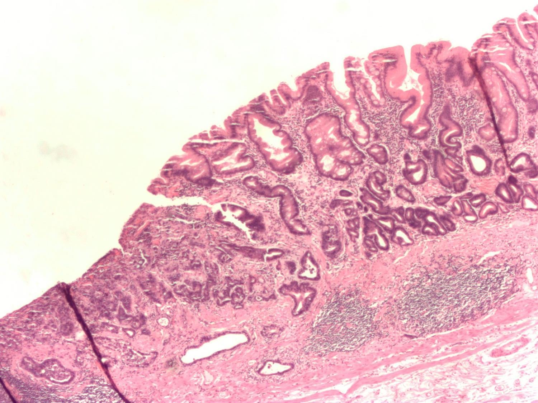 gastric cancer usmle)