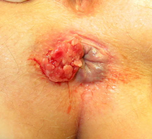 https://upload.medbullets.com/topic/120451/images/squamous_cell_carcinoma_of_anal_rim_01.jpg