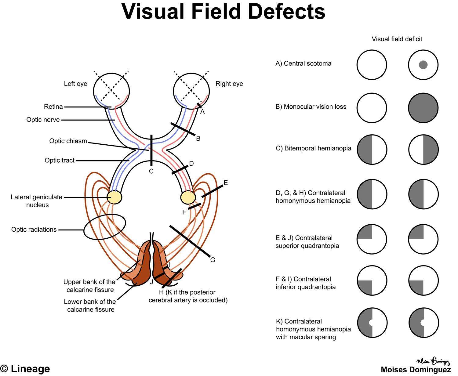 Visual Field Defects Ophthalmology Medbullets Step 2 3