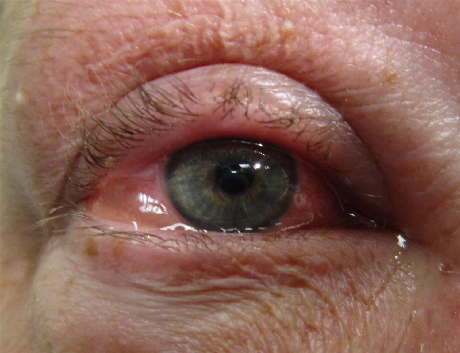 https://upload.medbullets.com/topic/120497/images/allergic_conjunctivitis.jpg