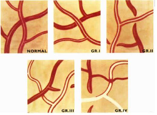 hypertensive retinopathy ophthalmology medbullets step 2 3 rh step2 medbullets com AV Nicking Retina copper wiring retinal exam