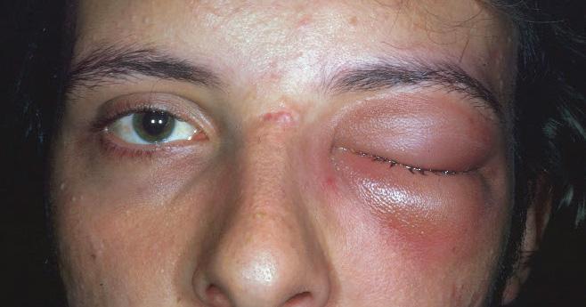 https://upload.medbullets.com/topic/120515/images/orbitalcellulitis.jpg