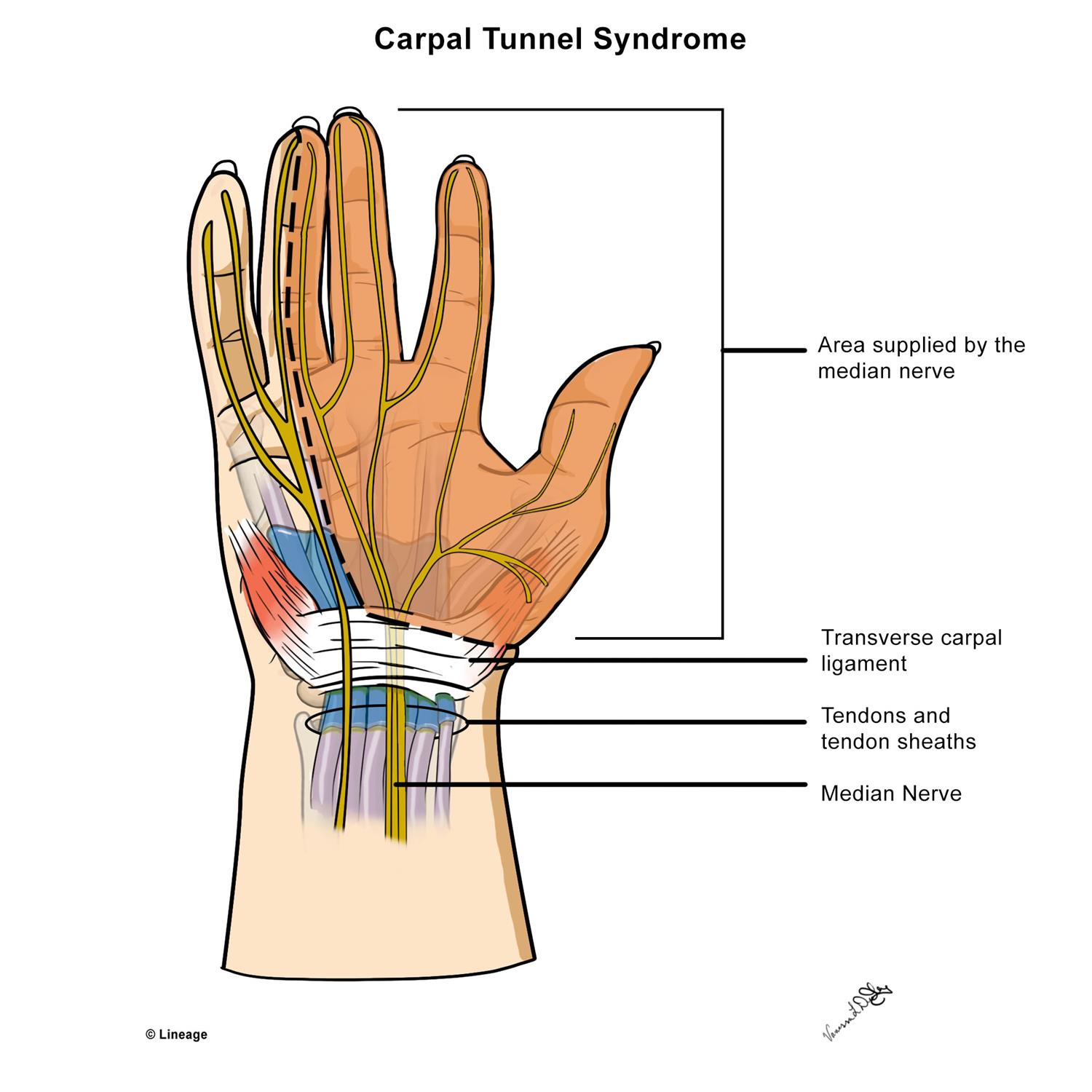 carpal tunnel syndrome - orthopedics - medbullets step 2/3