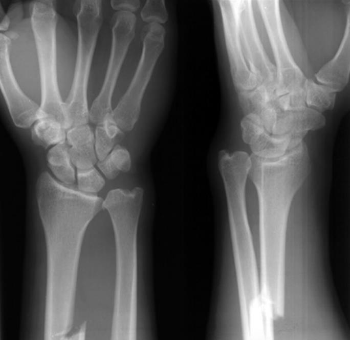 Galeazzi Sign Orthobullets