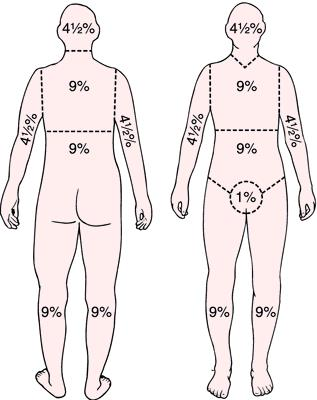 Remember the percent of surface area burned with: Head 9%, Chest 9%, Back 9%, Abdomen 9%, Lower back 9%, Arms 18%, Legs 36%