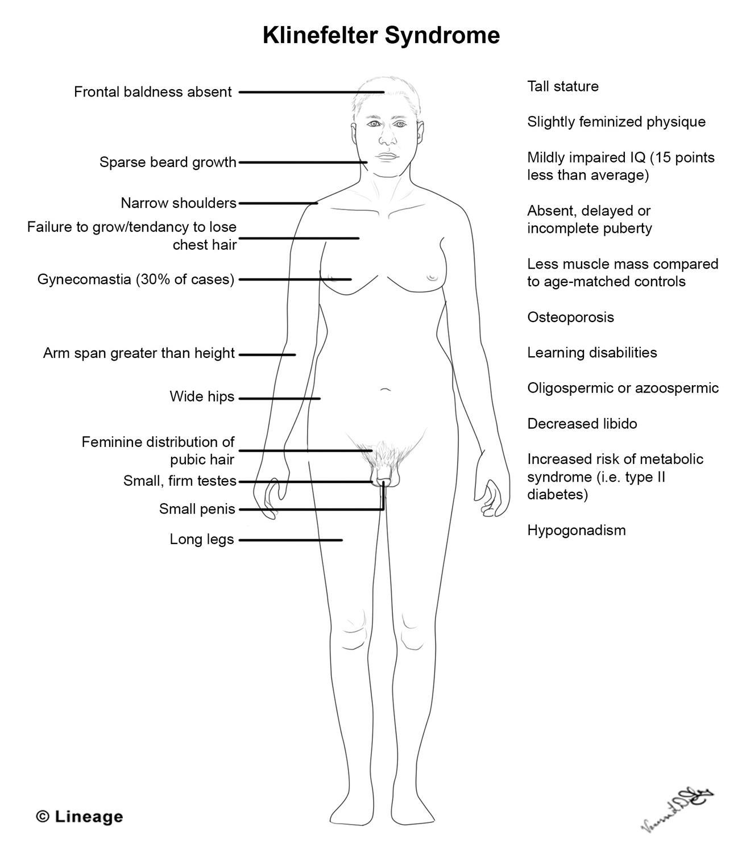 https://upload.medbullets.com/topic/120570/images/klinefelter_syndrome.jpg