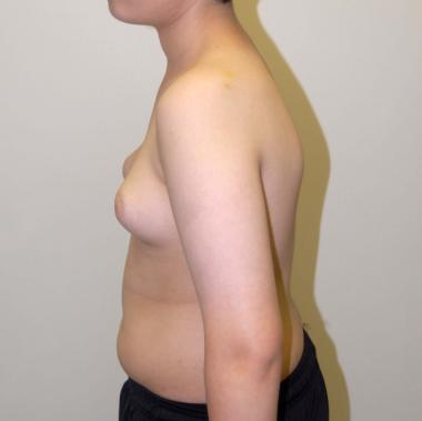 https://upload.medbullets.com/topic/120570/images/snap2_gynecomastia.jpg