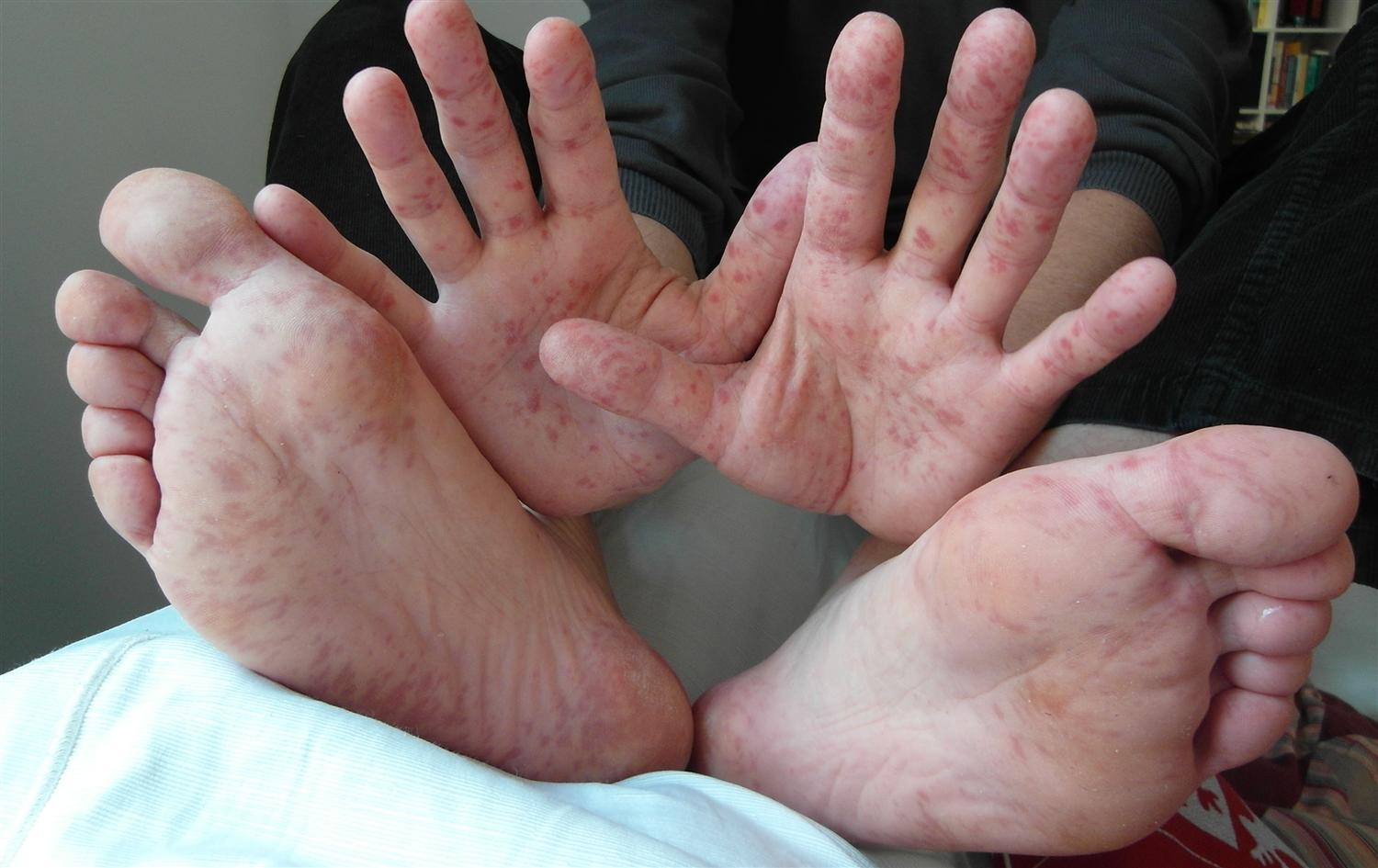 Hand-Foot-and-Mouth Disease - Pediatrics - Medbullets Step 2/3