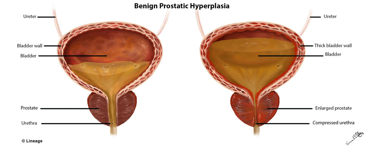 Jóindulatú prosztata megnagyobbodás (Benignus prostata hyperplasia: BPH) (x) - smink-suli.hu