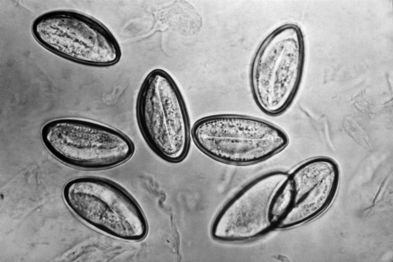 Enterobius vermicularis usmle,