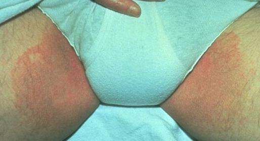 Tinea Cruris - Dermatology - Medbullets Step 2/3
