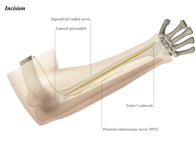 Forearm Dorsal Surgical Approach - Anatomy - Medbullets Step 2/3