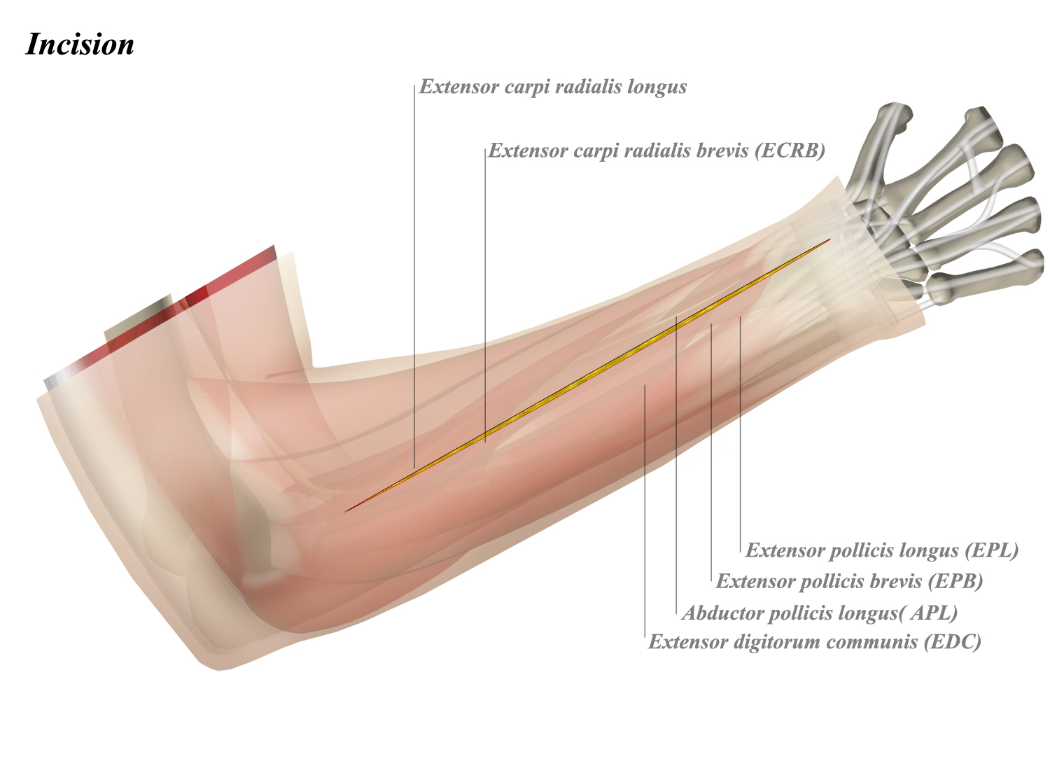Forearm Dorsal Surgical Approach - Anatomy - Medbullets Step 2/3