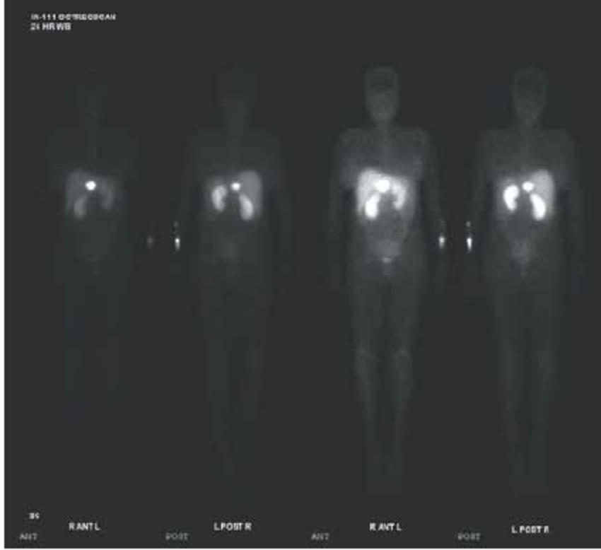 https://upload.medbullets.com/topic/121724/images/somatostatin-receptor-scintigraphy-octreotide-scan-showing-markedly-increased.jpg