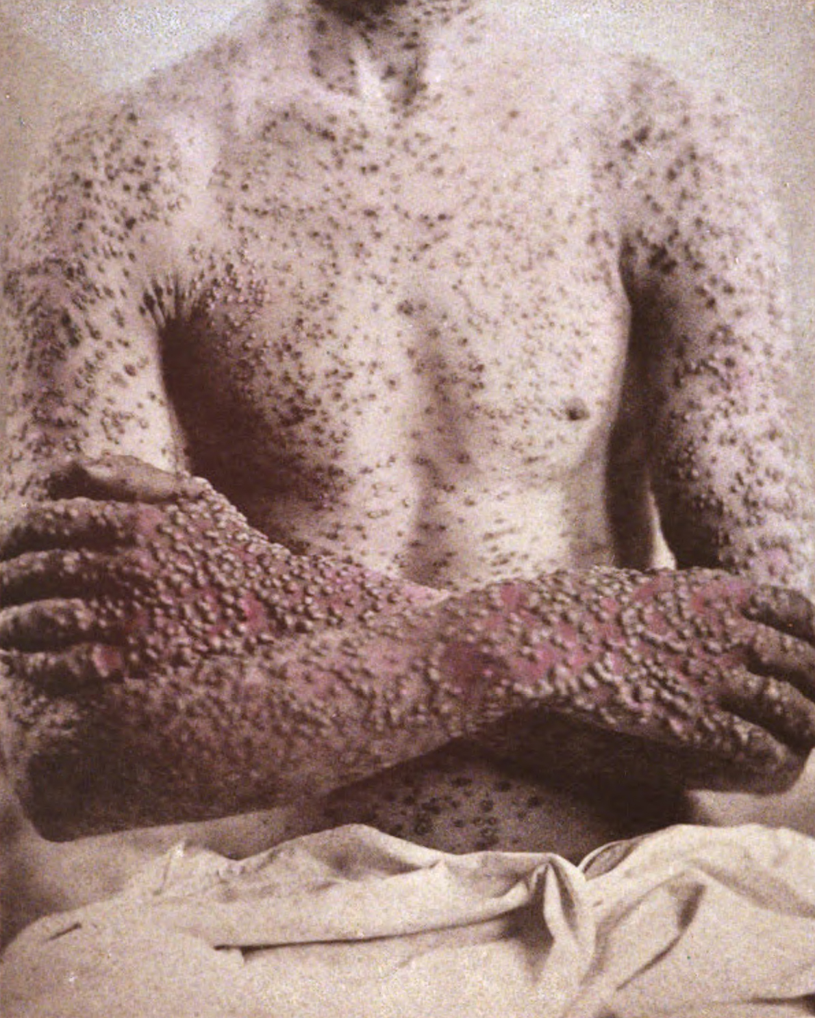Smallpox - Infectious Dis. - Medbullets Step 2/3