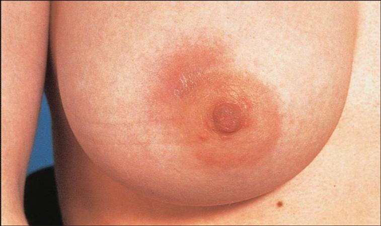 Mastitis Gynecology Medbullets Step 2 3