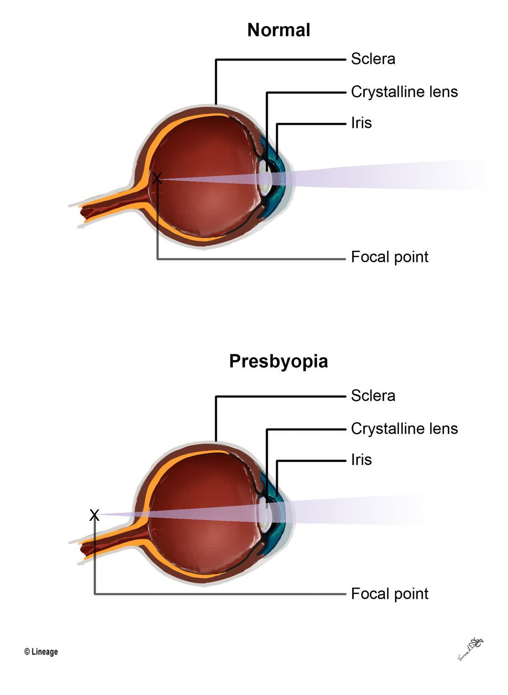 https://upload.medbullets.com/topic/121876/images/09042018vldstep2opthalmologypresbyopia.jpg