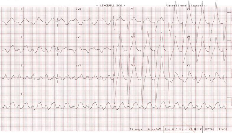 Rhabdomyolysis - Renal - Medbullets Step 2/3