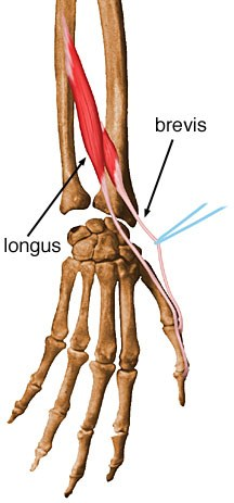 https://upload.medbullets.com/topic/121907/images/extensor-pollicis-longus.jpg