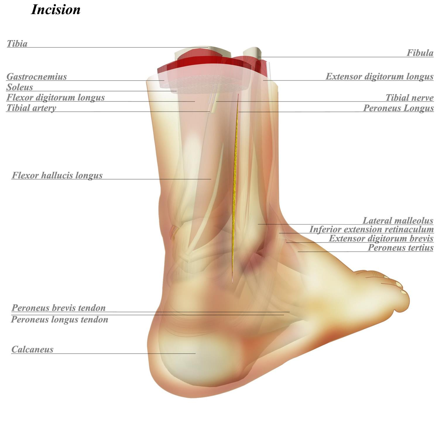Posterolateral to Ankle - Anatomy - Medbullets Step 2/3