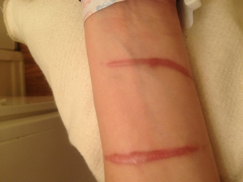 Hypertrophic Keloid Scars Dermatology Medbullets Step 2 3