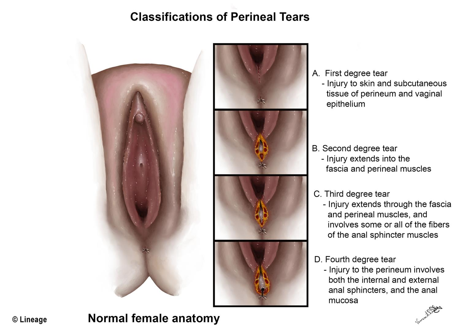 What are vaginal tears