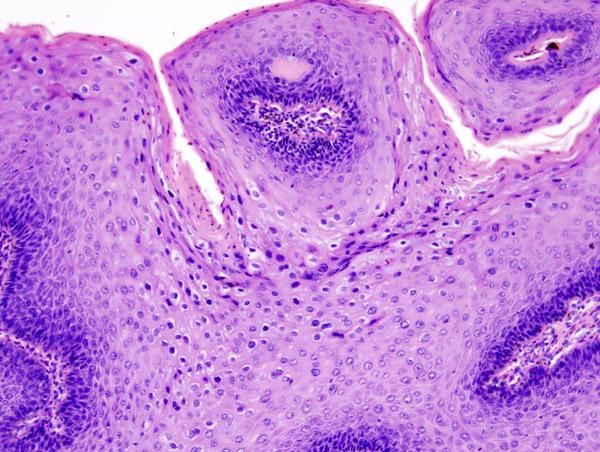 A szövődmények eltávolítása után a genitális szemölcsök - Milyen területeket érinthet?
